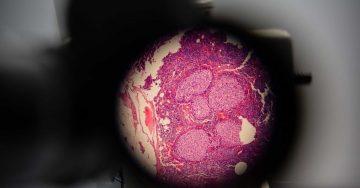 Учени откриха вирус, който се бори с рака – Вестник Утро