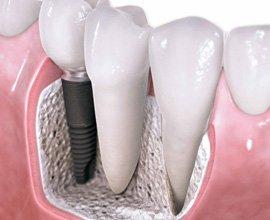 Поставяне на Дентални импланти – IG Dental