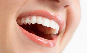 Как да постигнете ослепителна белота и перфектно оформени зъби