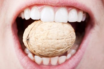 Бондинг – бърза корекция на усмивката – Дентална клиника Ортодент