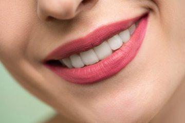 Как да си осигурим ефектна усмивка в холивудски стил