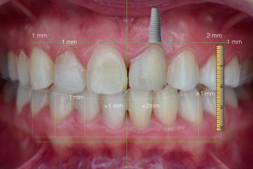 Коронки на зъби на най-добри цени – Virtue Dental Center