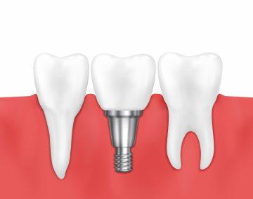 Зъбни импланти – лечението – Дентална клиника Ортодент